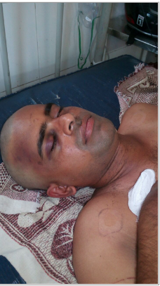 Hindu Extremists Beat Pastor Unconscious in Southern India after 'Miraculous' Conversions