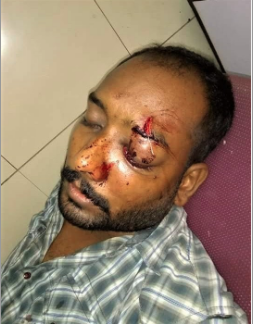 Christian Loses Sight in One Eye in Attack by Muslim Neighbors